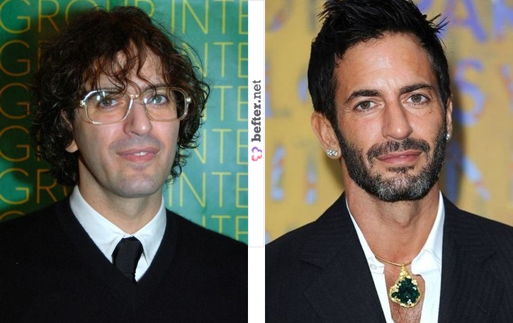before-after-marc-jacobs-by-rebeca-b
